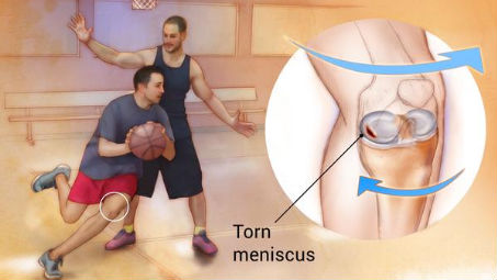 Infographic of meniscus tear